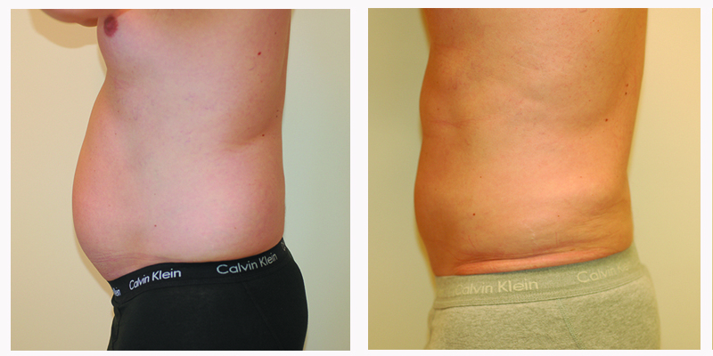 Get Back In Shape With Liposuction