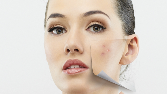 The Causes and Possible Cures Of Adult Acne