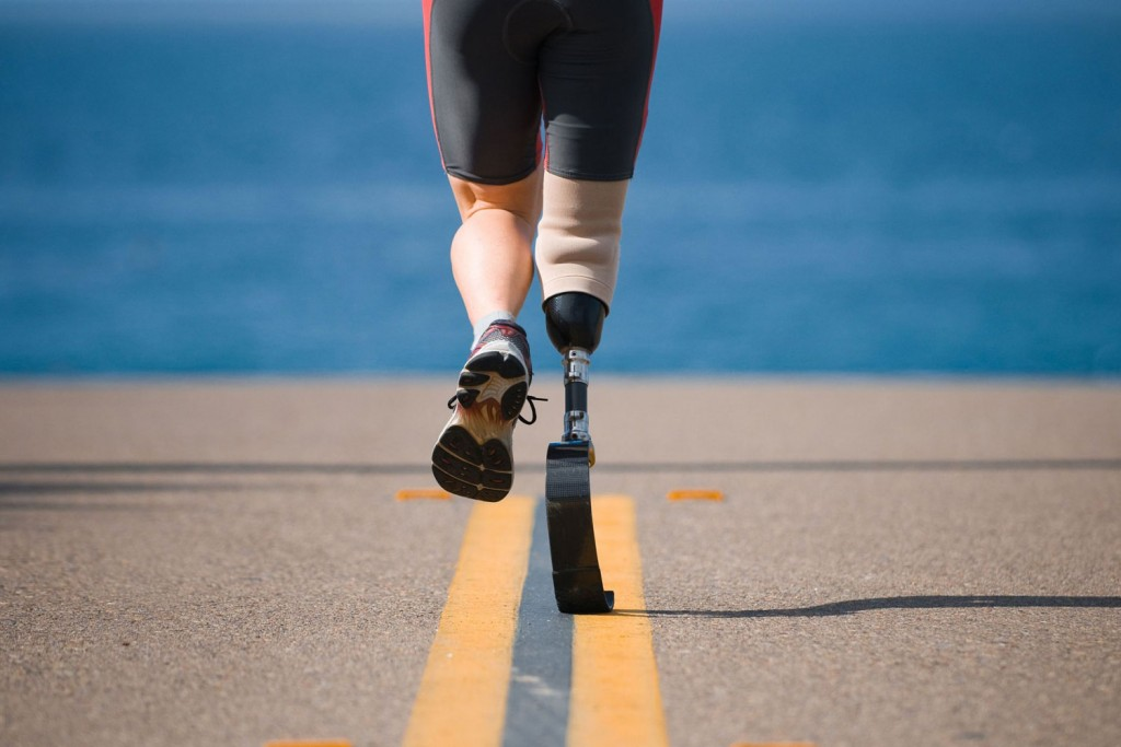 Prosthetic Limbs Helping You Regain Your Lost Strength