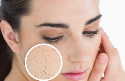 How To Treat Cracked and Dry Skin