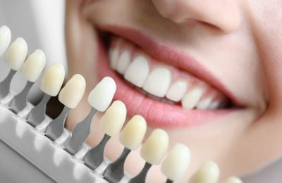 What You Need To Know About Tooth Replacements With Dental Implants